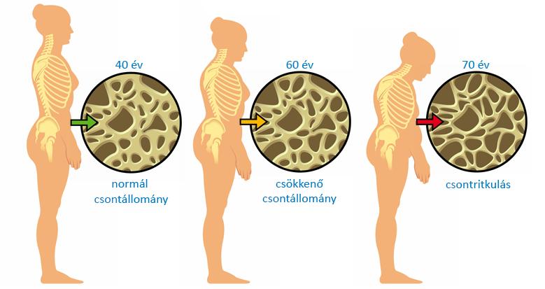 gyógyszerek csontritkulás kezelésére)