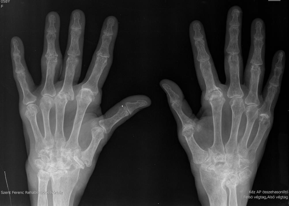 hogyan lehet kezelni a lábak felnőtt izületeit gyógyszerek csípőízületi kezelés