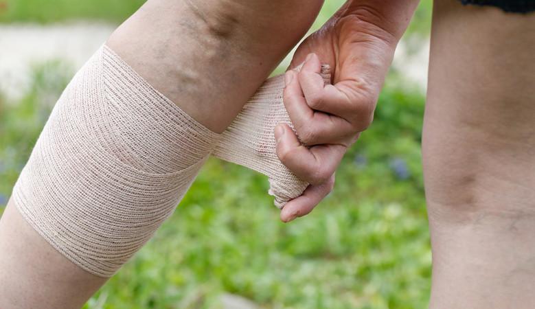 hogyan lehet kezelni az ecsetízület artrózisát)