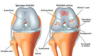 Mire utal a csípőfájdalom?