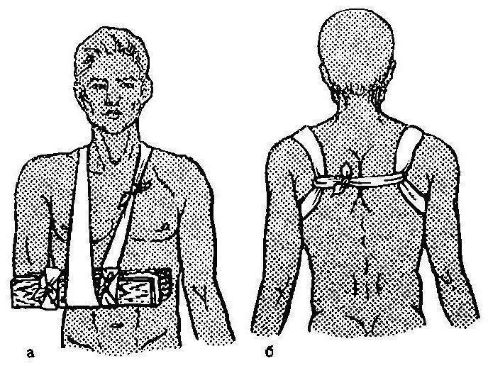 Dr. Diag - Hyperparathyreosishoz csatlakozó szimmetrikus erosiv arthropathia