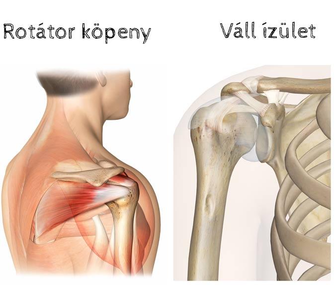 váll fájdalom a vállízületben vállízület kezelése osteochondrosis