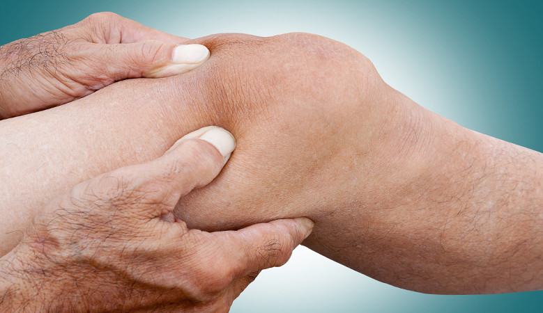 térdízületek fájdalma járás közben