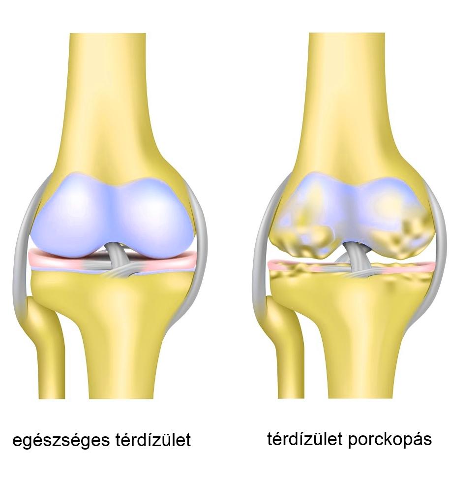 fájó térdízületek kenőcskezelési áttekintése)