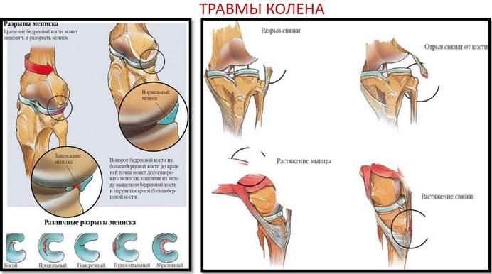 teraflex az artrózis kezelésében)