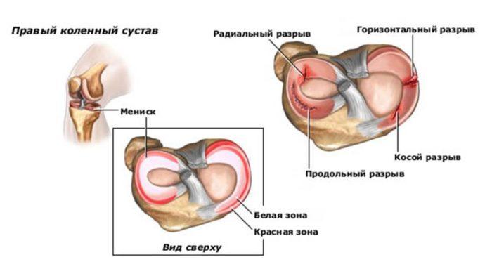 nyaki kezelés artrózis és osteoarthritis a keresztirányú keresztirányú arthrosis kezelése