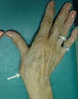 Fájdalom a hüvelykujj ízében - Masszázs