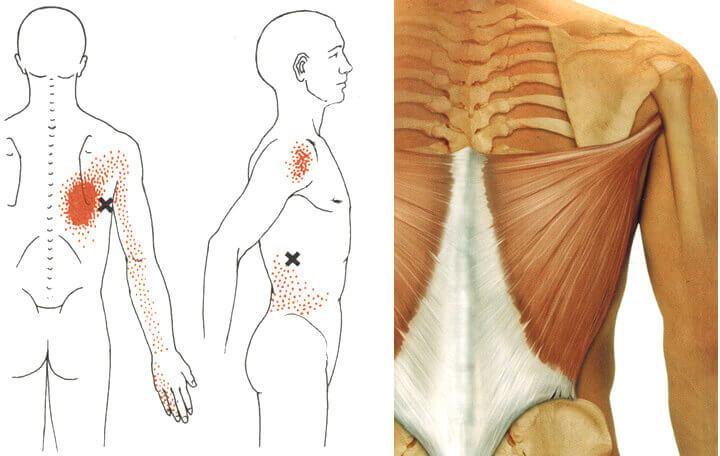 hogyan lehet kiküszöbölni a gerinc és az ízületek fájdalmát