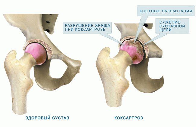coxarthrosis - Napidoktor