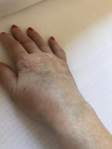 váll bursitis betegség)