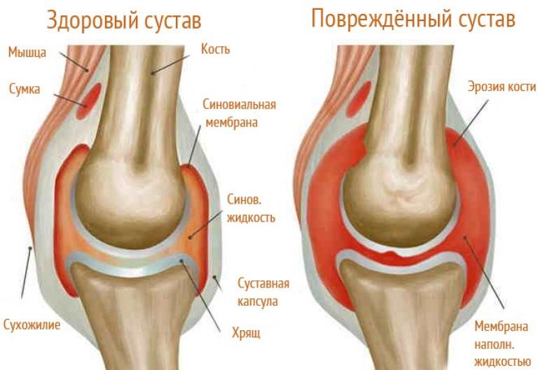 ízületi fájdalom nők kezelésében ozokerit használata ízületi fájdalmak kezelésére