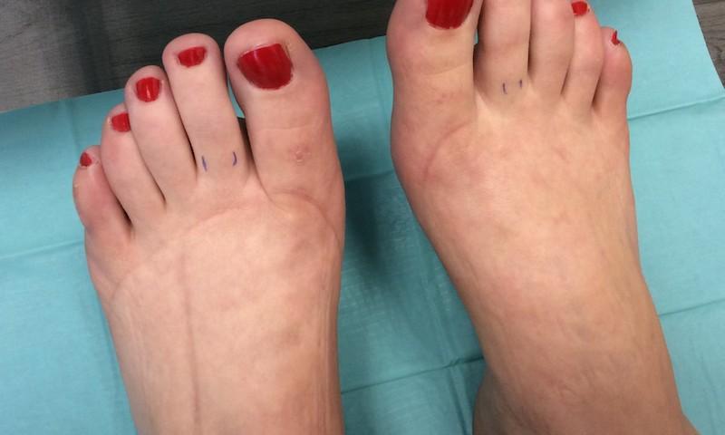 duzzadt és vörös láb