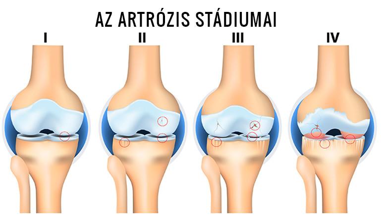 térdízületi kezelés artrózisa és tünetei
