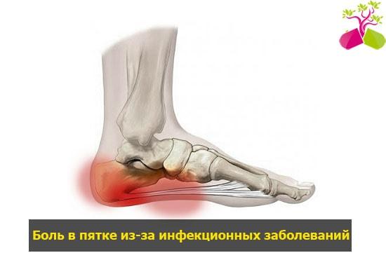 fájdalom a térdízületeken