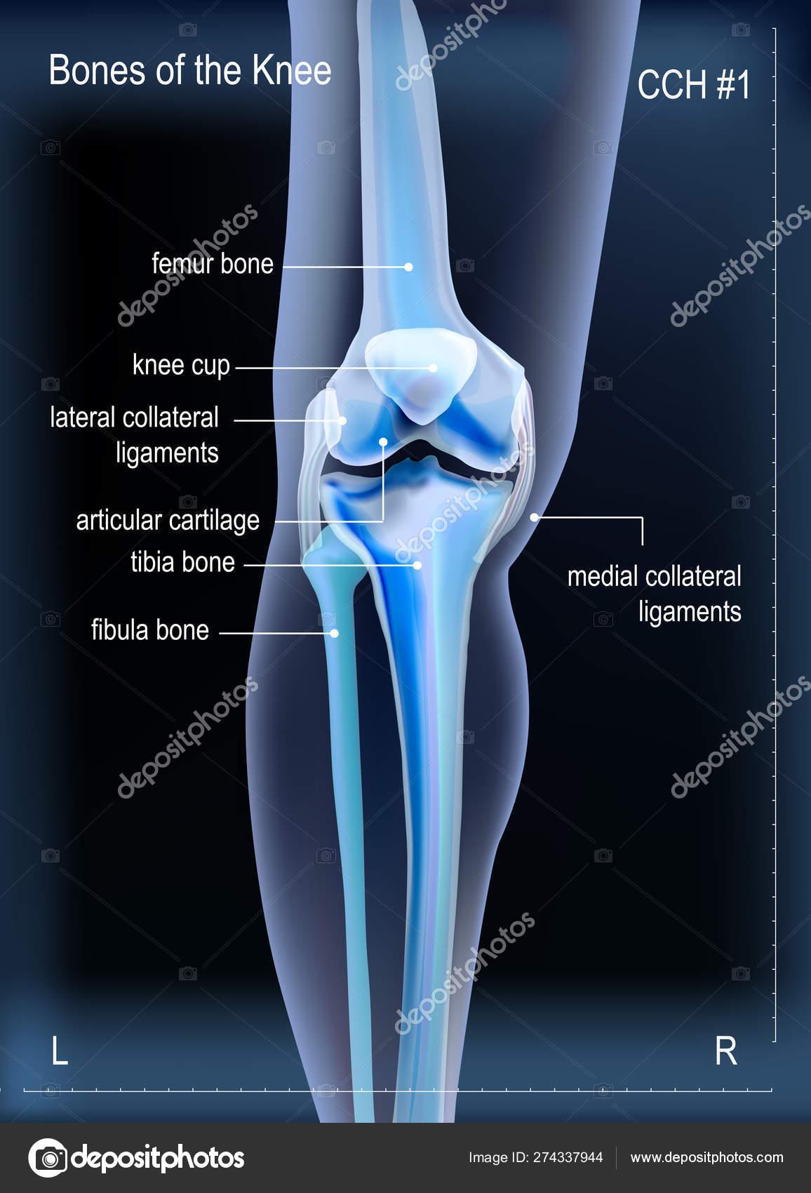 térd kenőcső osteoarthrosis a kézízületek betegségeinek felsorolása