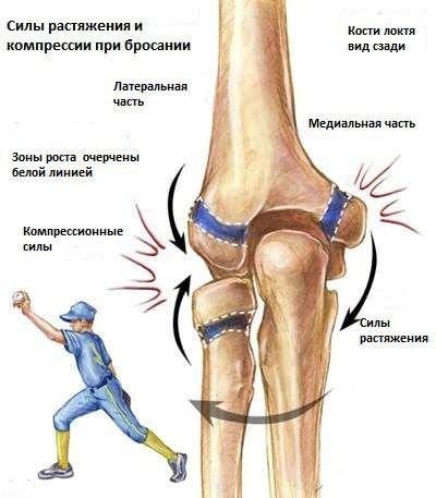 A könyökízület epicondylitisének okai, típusai, tünetei és kezelése