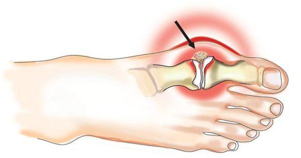 fájdalom a nagy lábujj metatarsofalangealis ízületében