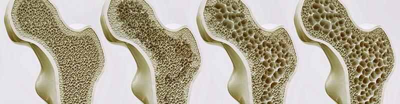 Csontritkulás kivizsgálása és kezelése