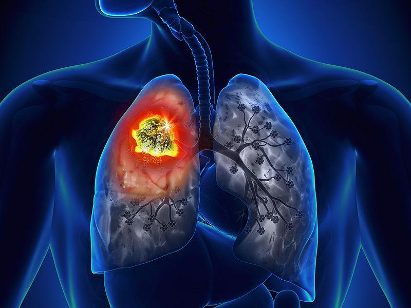tüdőrák tünetei hátfájás