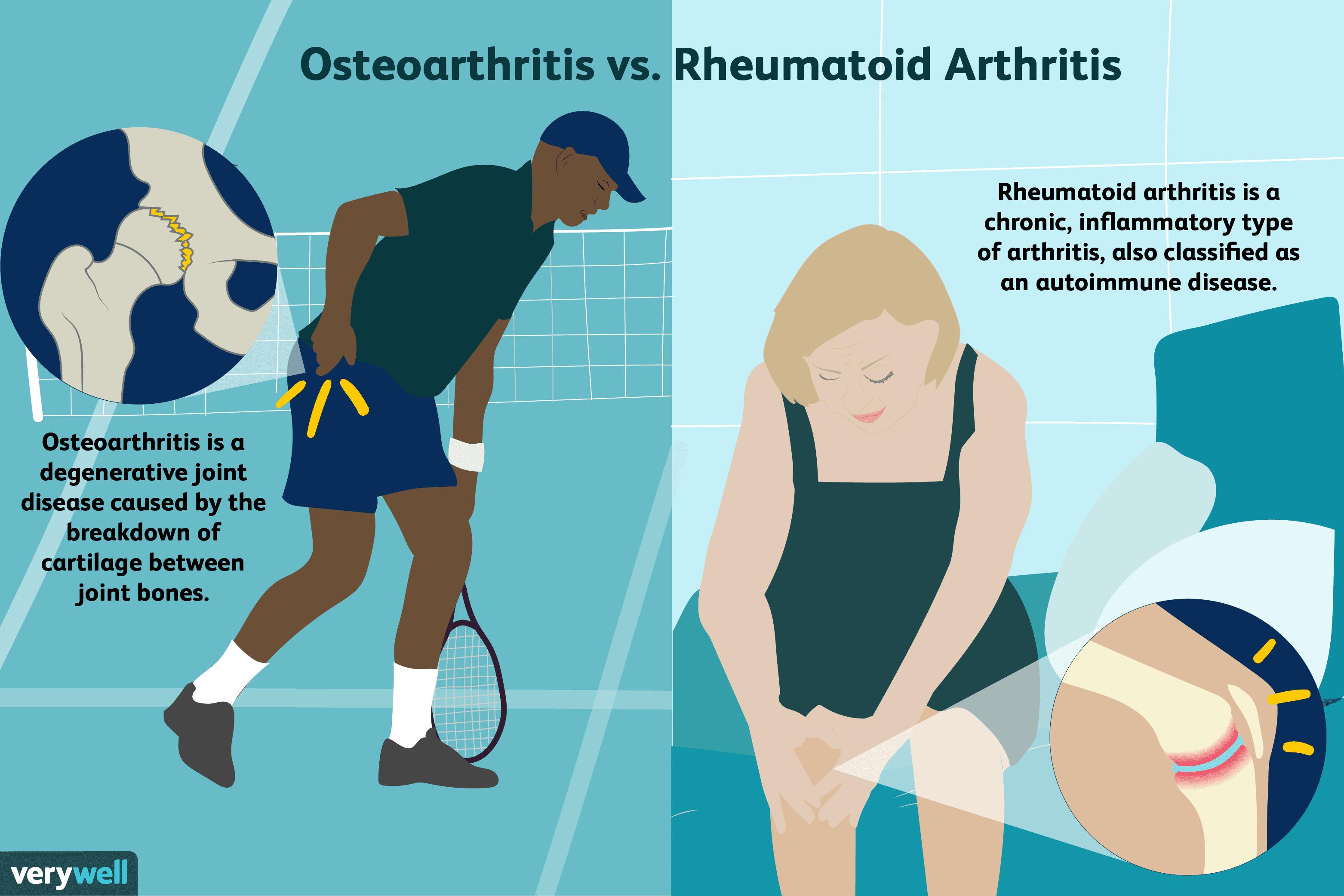 a jobb csípőízület rheumatoid arthritis