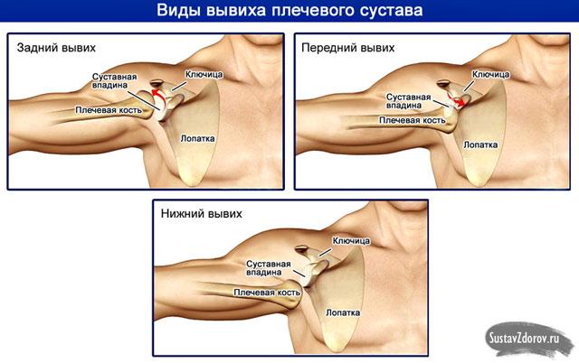 kezelés a könyökízület elmozdulása után diéta térdfájdalom esetén
