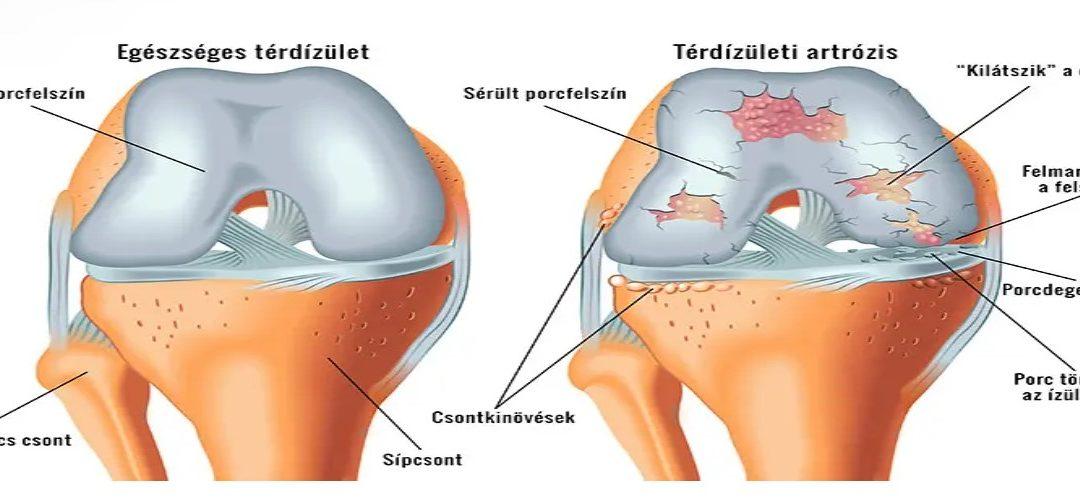 éles súlyos fájdalom a térdízületben)