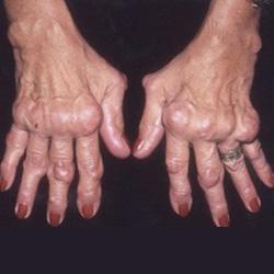 artrózis kezelése réz-szulfáttal)