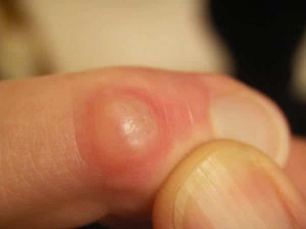 kenőcsék térdízületek fájdalmainak kezelésére az ízület fáj, ha megnyomják