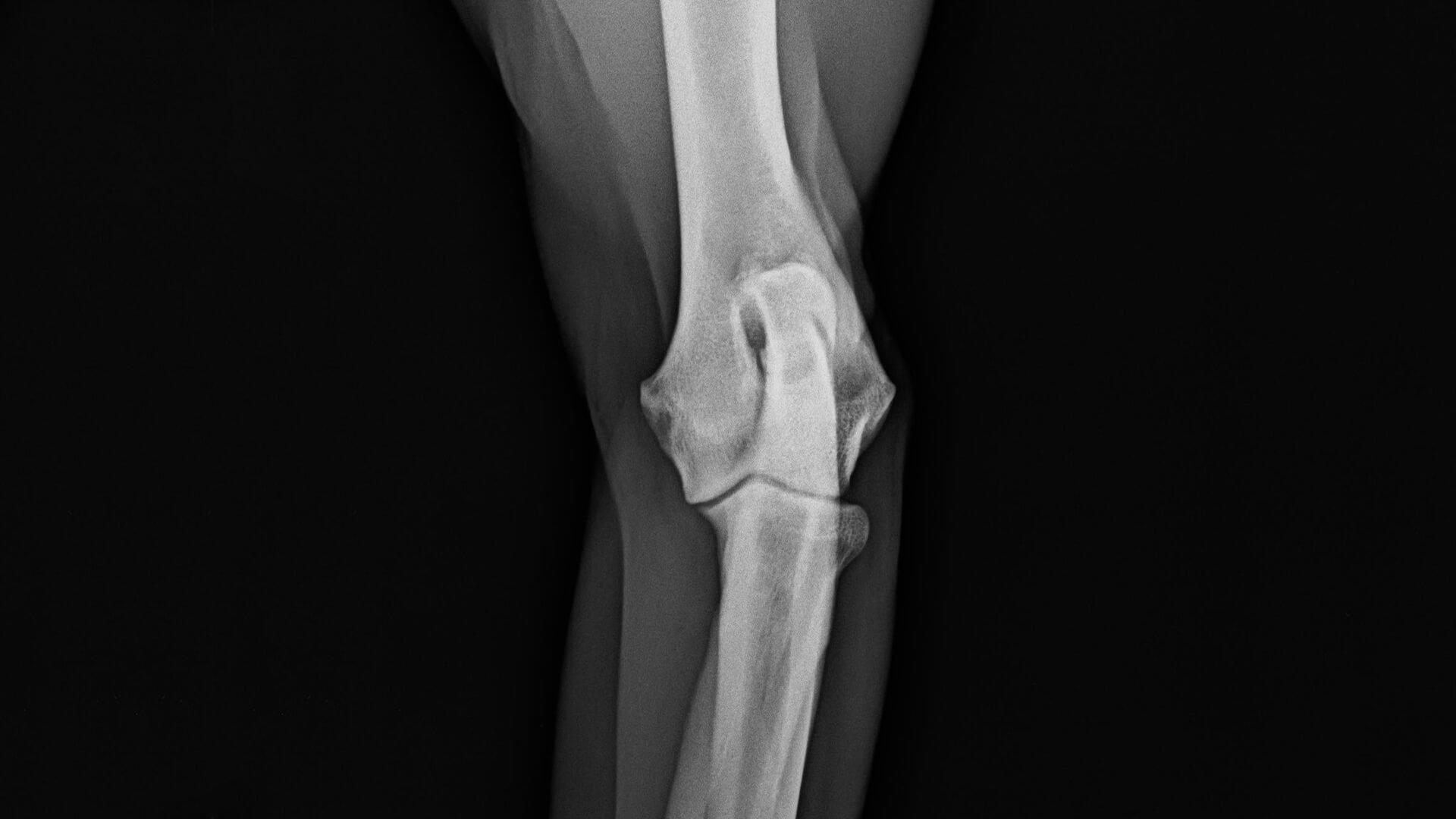a térd artrózisának kezelésére szakosodott orvos)