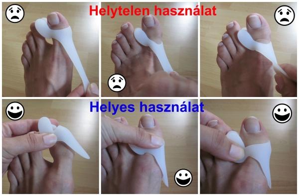 artrózis 2 lábujjak kezelése)
