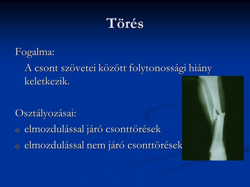 a csont- és ízületi sérülések okai)