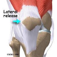 térd patellofemoralis artrózisa 2 fokos kezelés