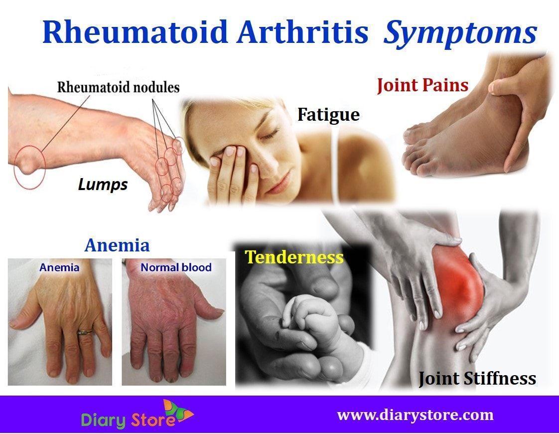 Kézi ízületi betegségek, fájdalomkezelés - Csukló July