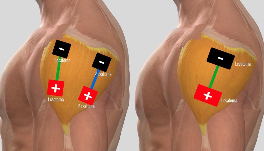 a vállízület 3. fokú artrózisának kezelése)
