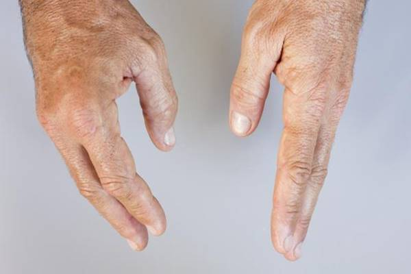 fájó ligamentumok boka kezelése