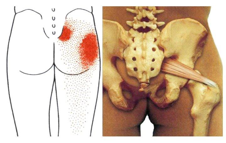 kenőcsök gélei az oszteokondrozis kezelésében miért veszélyes az ízületek ízületi gyulladása