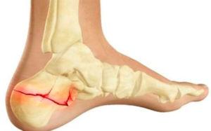 a vállízület kenőcsének artrózisa kezelésre