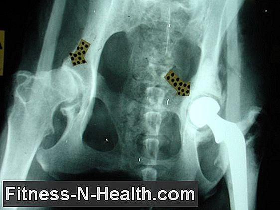 arthrosis coxarthrosis tünetek kezelése