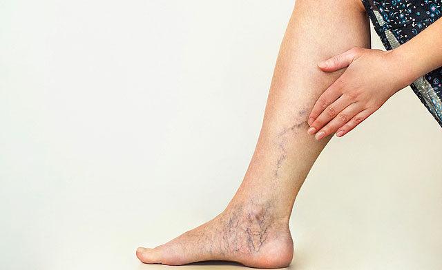 fáj a fájdalom a lábban csontritkulást kezel-e ízületi gyulladás