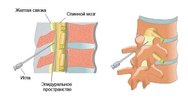 A cervicalis osteochondrosis gyógyszerei