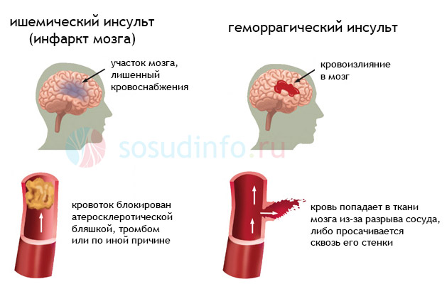 cerebrovaszkuláris baleset nyaki osteochondrozis gyógyszerekkel abano terme arthrosis kezelés