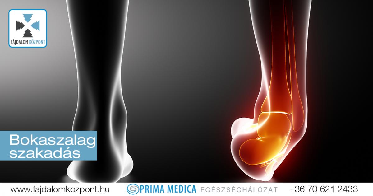 második fokú térdbetegség a térdízület kezelés kezdeti stádiumú artrózisa