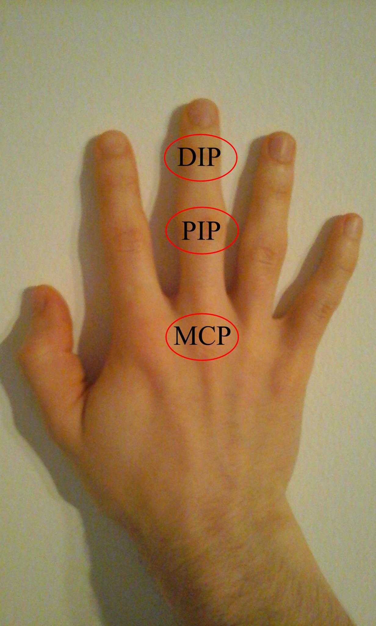 Kéz egy kefével. Interfalangeális és metacarpophalangeális ízületek