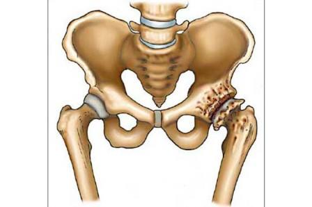 Az 1. fok csípőízületének osteoarthritisza: a kórtani folyamatok jellemzői és kezelése.