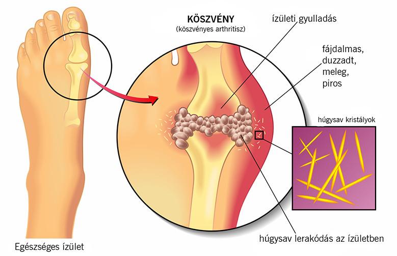 köszvényes arthritis boka kezelése