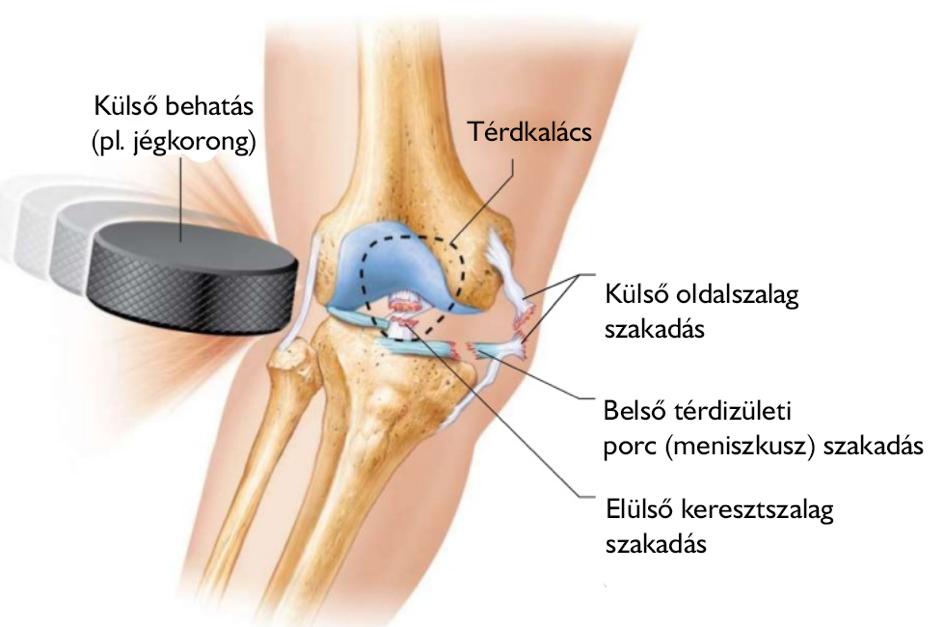 térdízület patológia kezelés