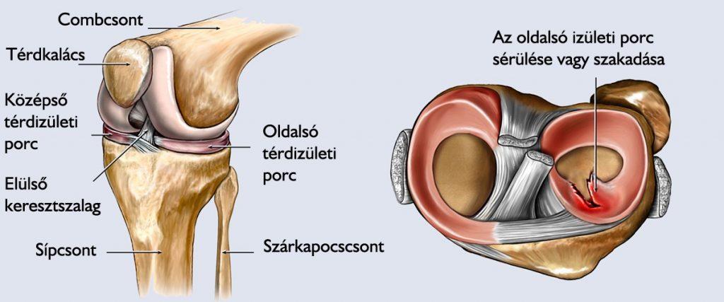 térdízületi gyulladás kezelése súlyosbodással)