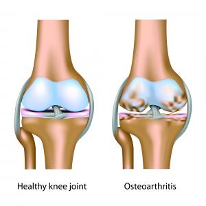 nehézség lábakban és ízületi fájdalmak