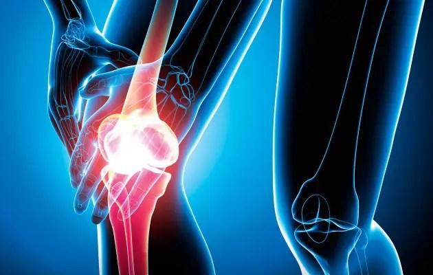 hogyan kezeljük a térdízület 1. fokozatának osteoarthrosisát dió közös kezelésre