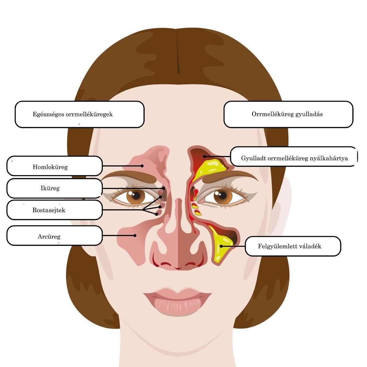 hogyan lehet szalagot készíteni az ízület kezelésére ízületi fájdalom nemi fertőzések